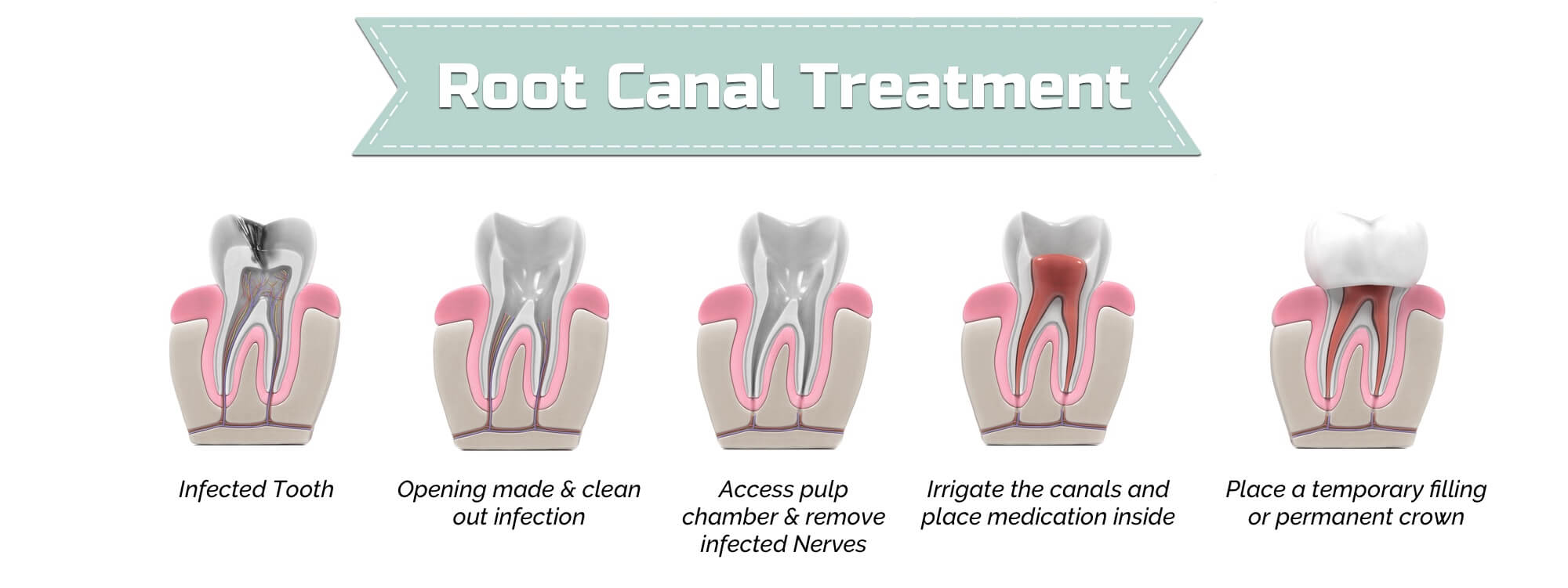 root canal therapy and treatment | michelle wang dds
