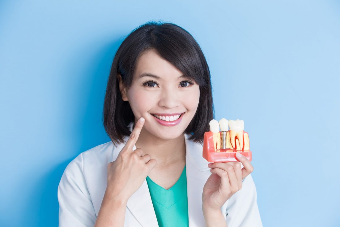 Top Reasons For Choosing Dental Implants