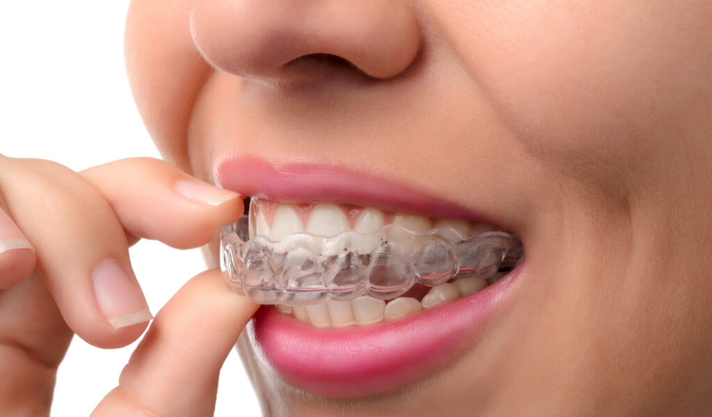 5 Signs You May Need to Wear a Mouth Guard at Night