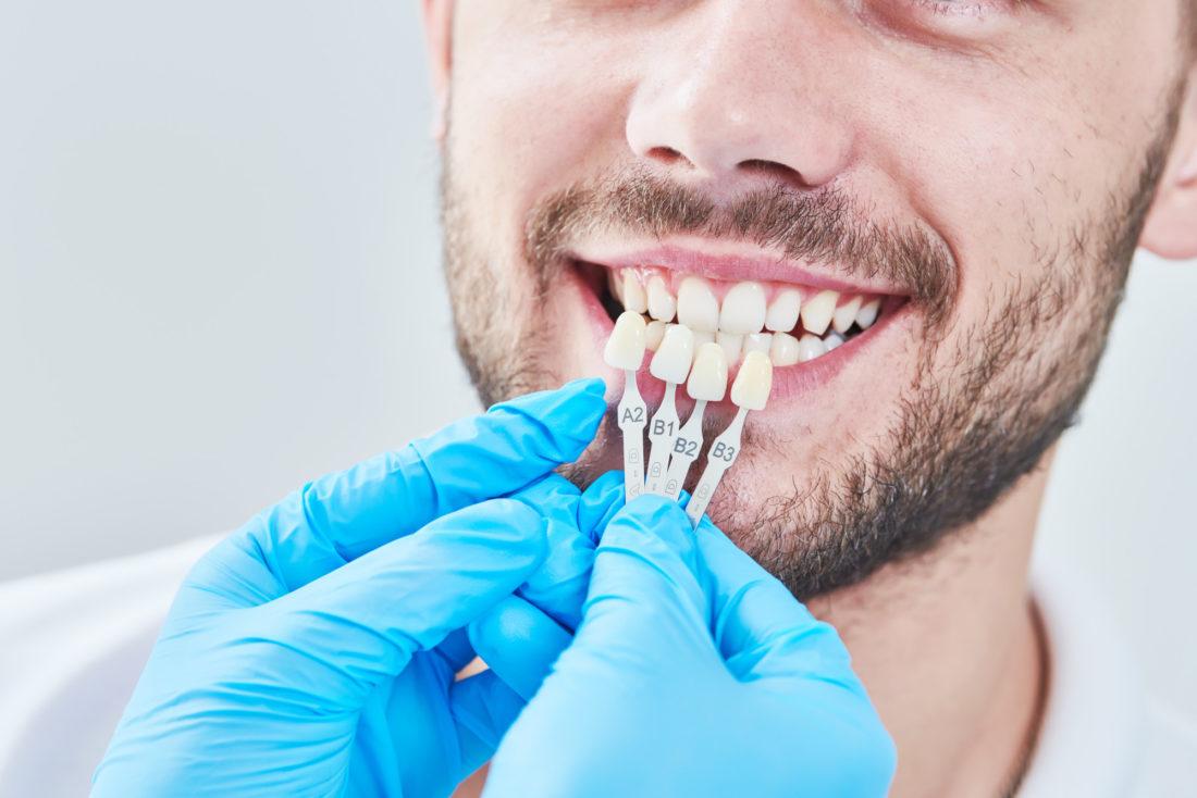 Dental Veneers: 7 Amazing Benefits of Veneers You Did Not Know
