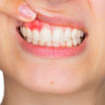 Pink in the Sink: Top 5 Common Causes of Bleeding Gums
