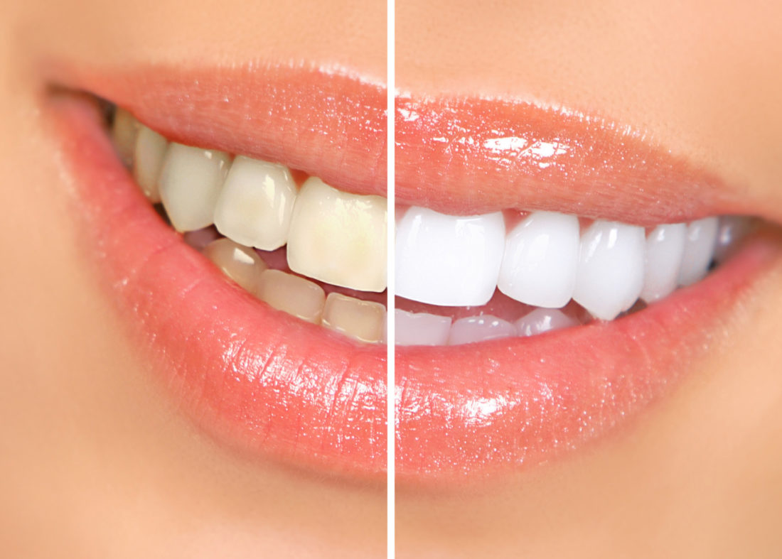4 Foods and Drinks That Cause Yellow Teeth